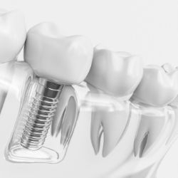 Eglinton and Dufferin dental implants